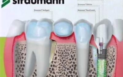 Qual o melhor implante dentário?