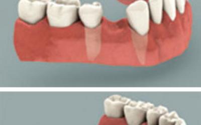 O que é um implante dentário?