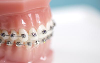 Nova técnica em Tratamento Ortodôntico possibilita Alinhamento dos dentes mais rápido e com menos consultas