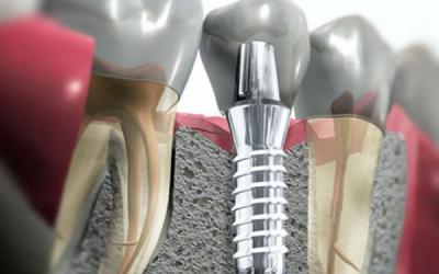 Perguntas e Respostas sobre Implantes