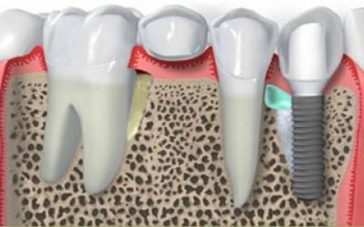 Implante dentário nacional x implante importado: vale a pena usar um implante importado?