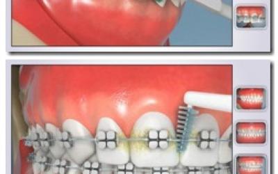 Higiene Oral em 3D