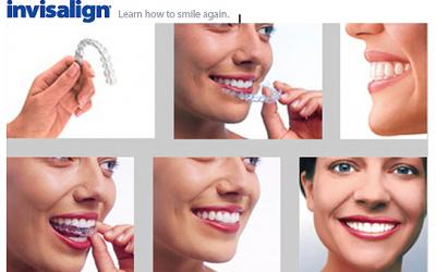 Ortodontia Invisalign®